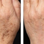 Age spot Before/After